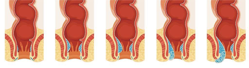 Hemoroidi - normalni i 4 stadijuma